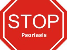 Alles over psoriasis